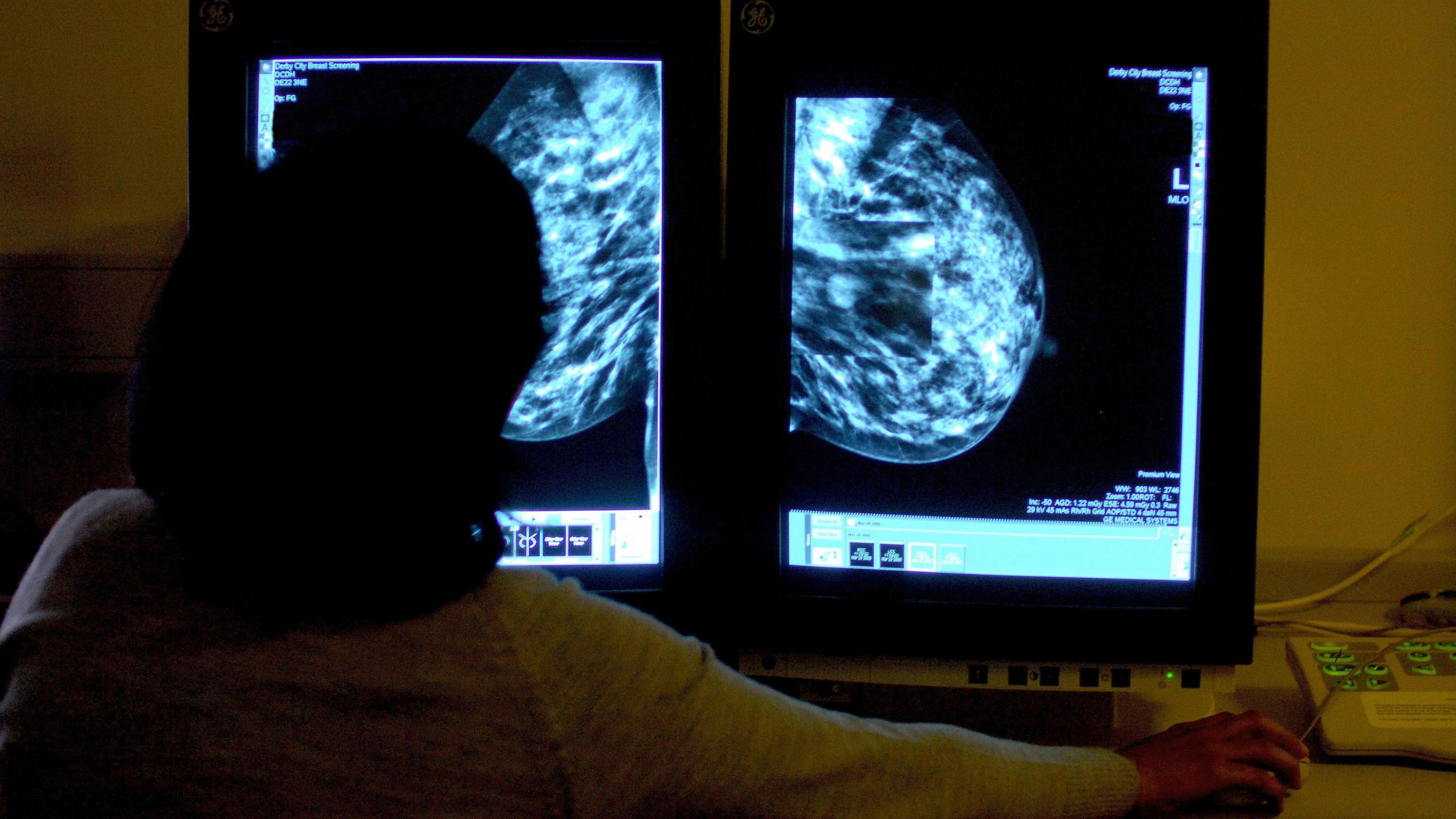 Breast cancer beast can be 'tamed', say scientists