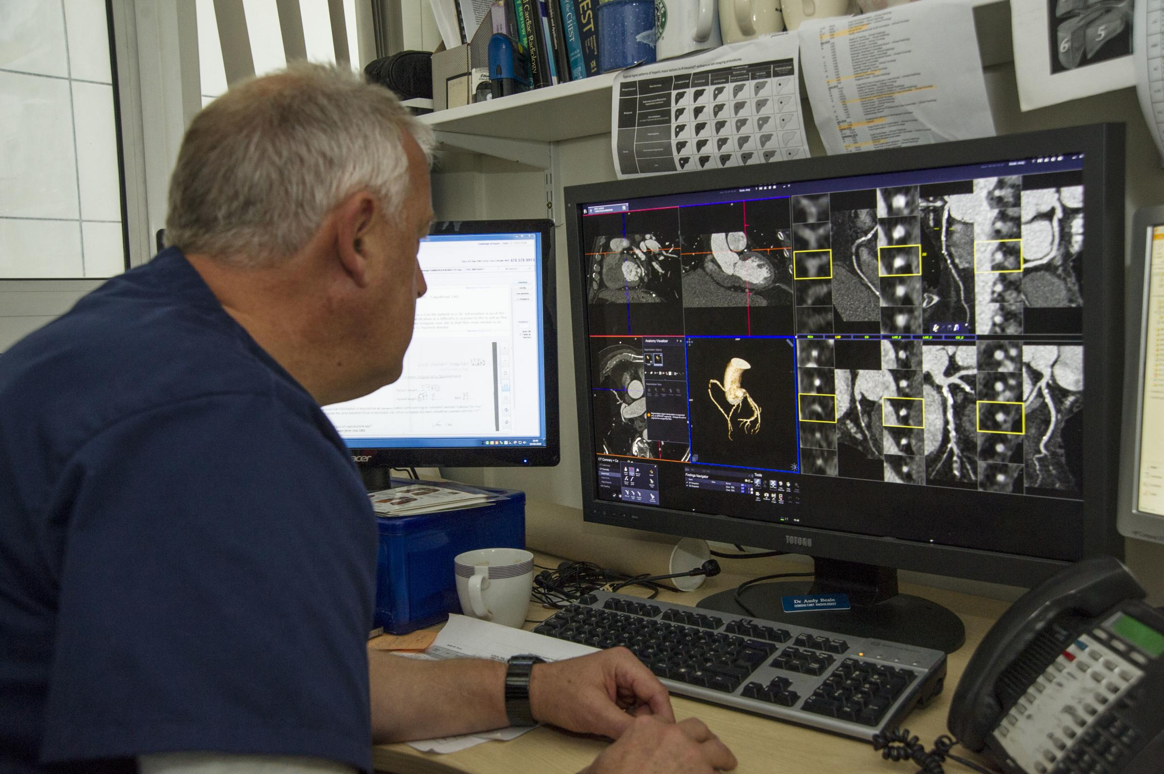 Global quest to bring 32 radiologists to Scotland recruits just FIVE